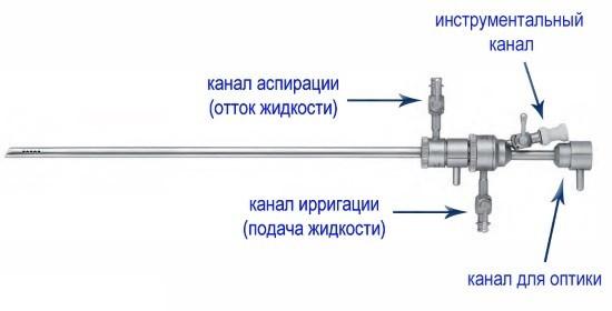 Составные части гистерорезектоскопа