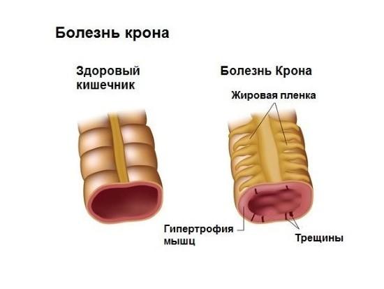Гранулематозный энтерит