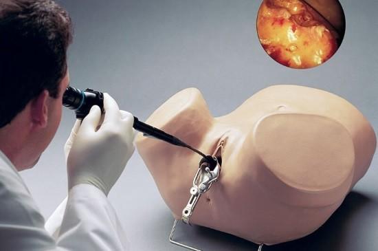 Гинеколог отрабатывает навыки гистероскопии