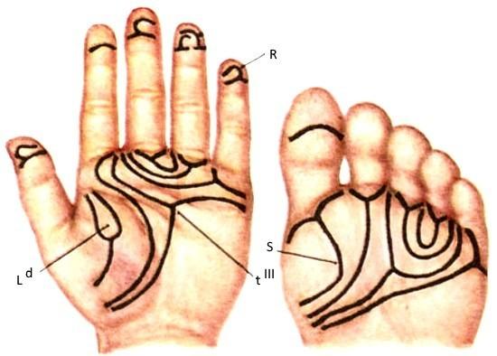 Нарушения дерматоглифики при трисомии D1