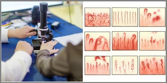 Капилляроскопическое исследование