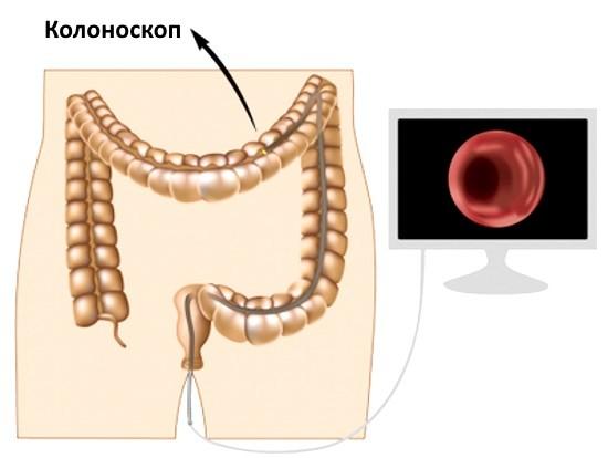 Колоноскопия ─ современный метод диагностики патологий толстого кишечника