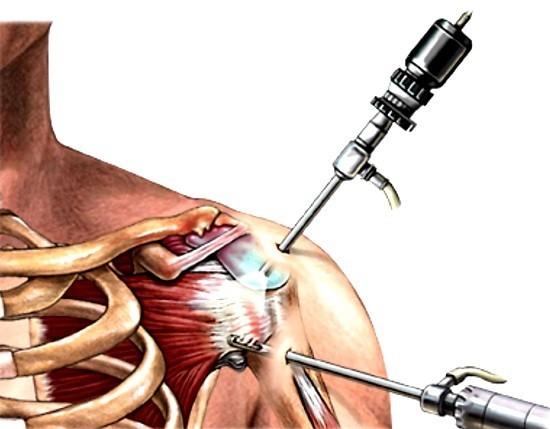 Артроскопия – процедура с минимальной травматичностью