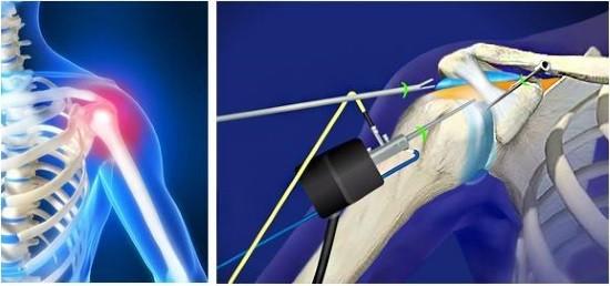 Ход артроскопии и выбор тактики лечения определяется хирургом