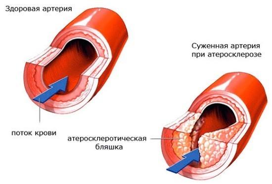 Холестериновая бляшка