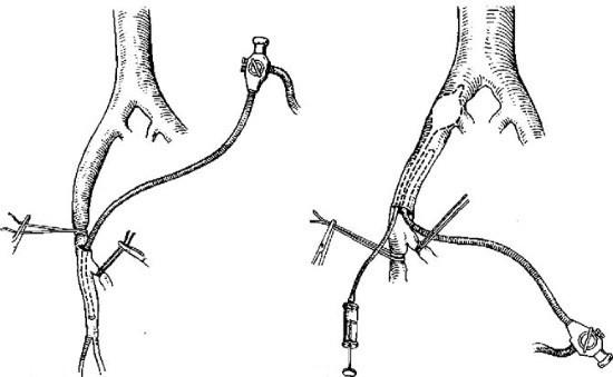 Схема ангиоскопии
