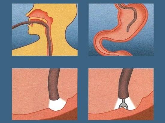 При необходимости с помощью биопсийной цапки проводится скус тканей