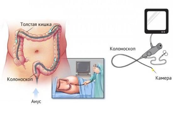 Эндоскопическое исследование толстого кишечника