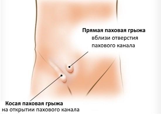Классификация паховых грыж по анатомическому признаку