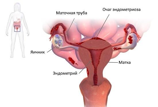Эндометриоз – коварная болезнь