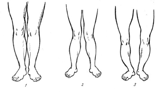 Кривизна ног