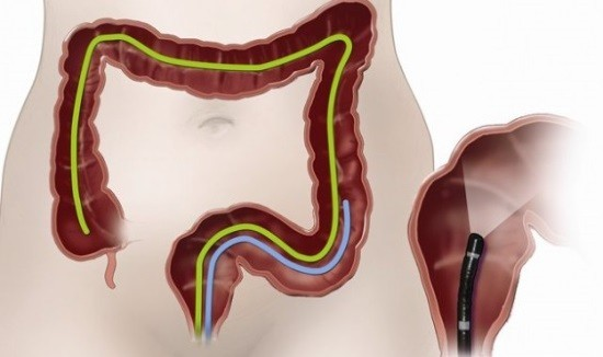 Эндоскопическое исследование толстой кишки