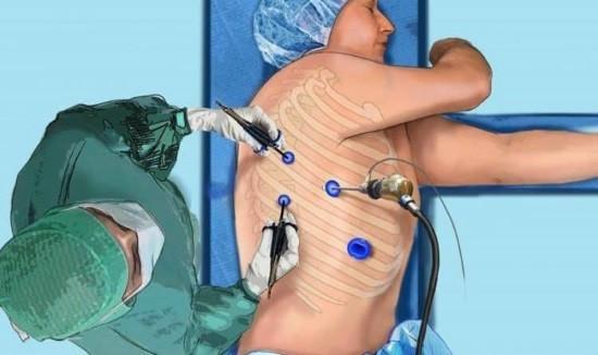 Проведение торакоскопии