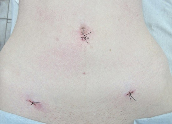 After surgery stitch complications