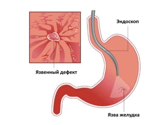 Язвенный дефект слизистой желудка