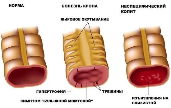 Поражение толстого кишечника при разных патологиях