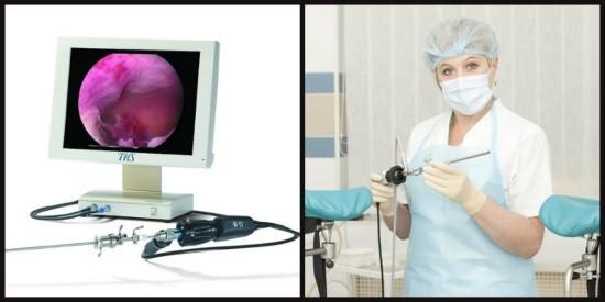 Выделяют диагностическую и операционную гистероскопию