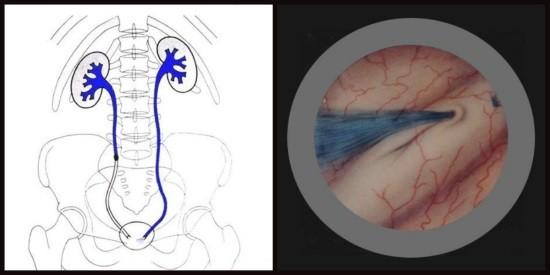 Проведение хромоцистоскопии