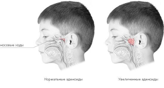 Гиперплазия глоточной миндалины (справа)