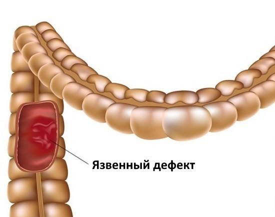 Воспалительное заболевание кишечника