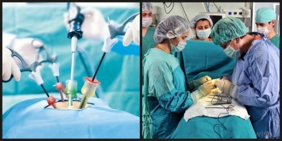 Лапароскопия и полостная операция