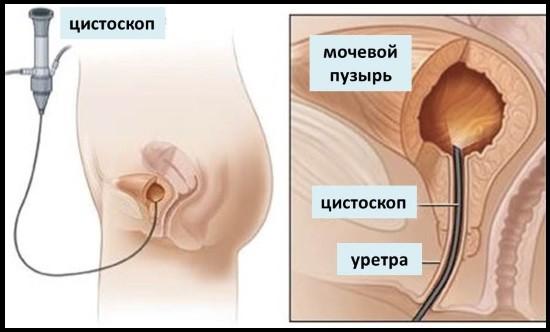 Использование гибкого цистоскопа
