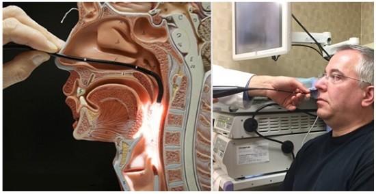На конце эндоскопа имеется объектив
