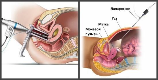 Эндоскопические исследования матки и придатков