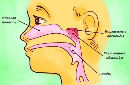 Глоточная миндалина