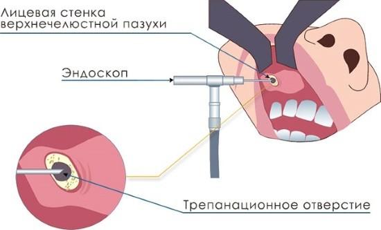 Введение эндоскопа в гайморову пазуху