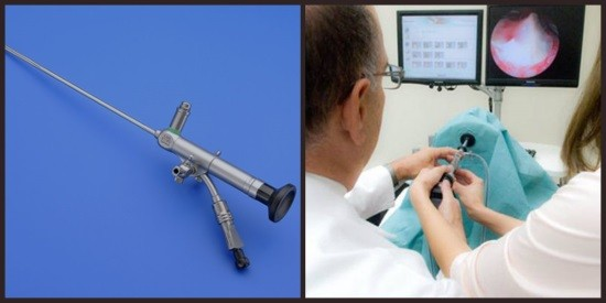 Изображение во время гистероскопии передается на монитор