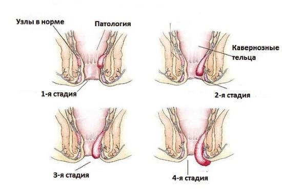 Расширение геморроидальных вен