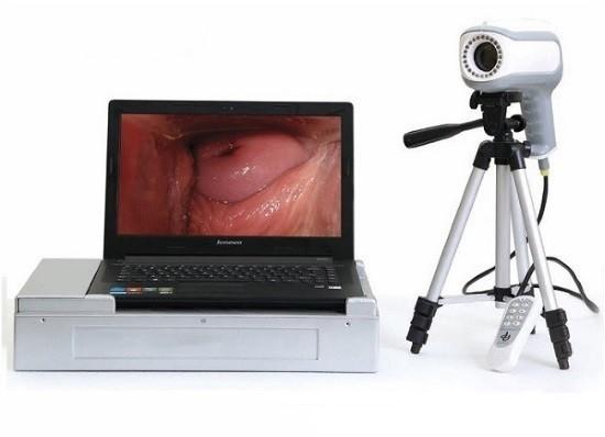 Современный прибор для проведения кольпоскопии