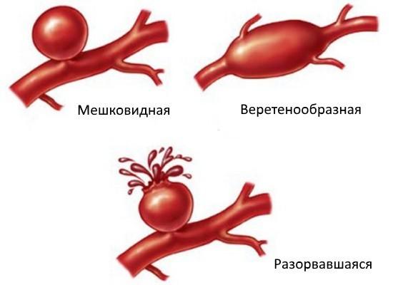 Аневризмы