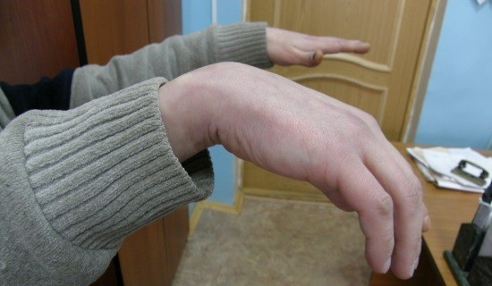 Воспаление лучевого нерва