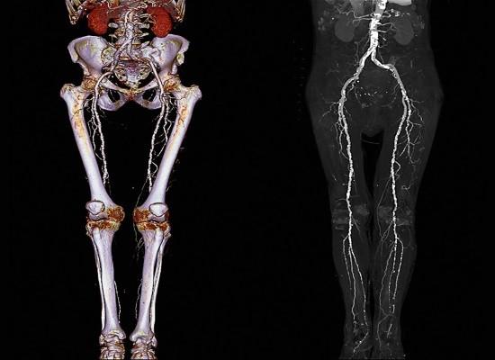 Для проведения КТ ангиографии применяются мультиспиральные компьютерные томографы