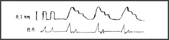 Ангиодистонический тип РЭГ
