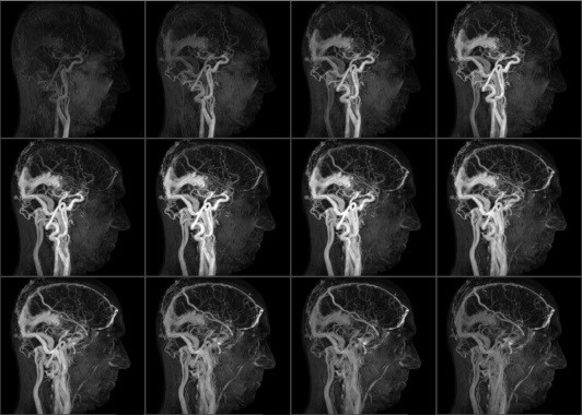 КТА головного мозга