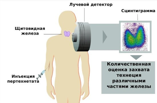 Методика сцинтиграфии ЩЖ