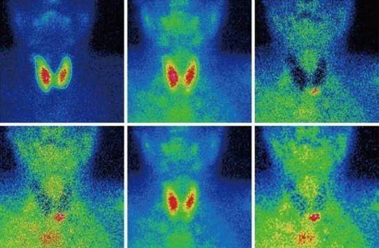 Сцинтиграфия щитовидной железы позволяет определить наличие узлов и оценить их активность