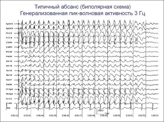 Типичный абсанс характерен для идиопатической эпилепсии
