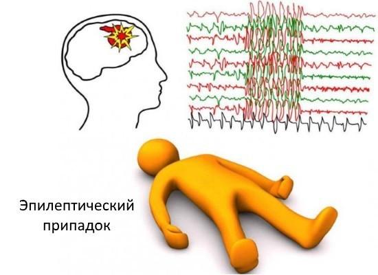 Не следует считать эпилепсию приговором