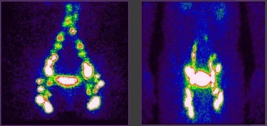 Изображения, полученные при проведении лимфосцинтиграфии