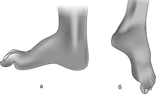 Характерный вид стоп при поражении различных нервов
