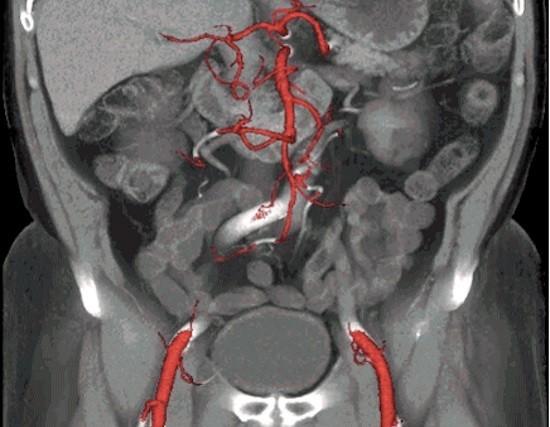 Изображение полученное на КТ-ангиографии брюшной полости