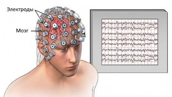 Электроды располагают на поверхности головы