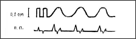 Волны со сглаженными структурными элементами