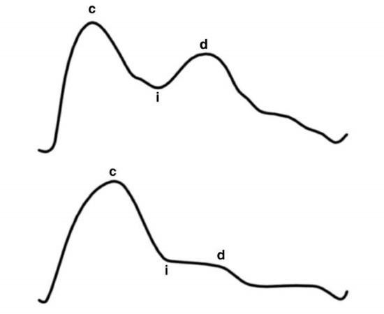 c — вершина систолической волны; d — вершина диастолической волны; i — инцизура