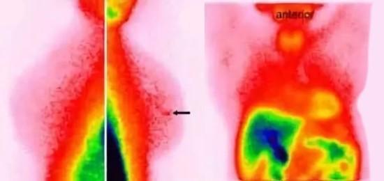 Фиброзно-кистозная мастопатия на сцинтиграфии