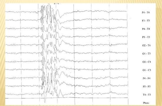 Эпилепсия на ЭЭГ